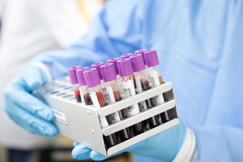 """Vaccino anticovid, le nostre""""eccellenze italiane"""" in prima linea per trovare la soluzione"""